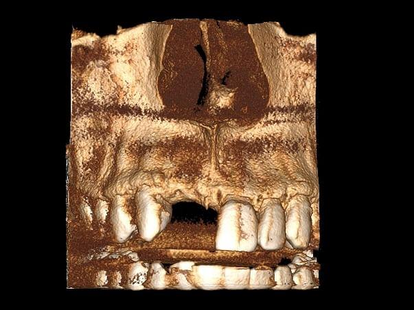 Help me for Teeth Implant - Immediate Help needed