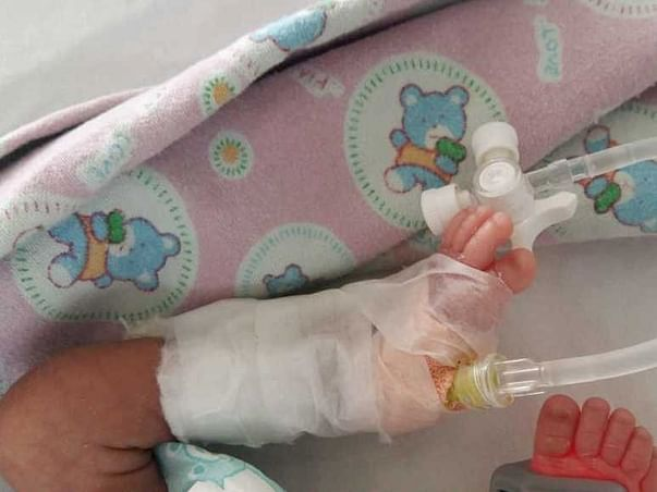 Support New Born Baby Recover From Breathing Problems