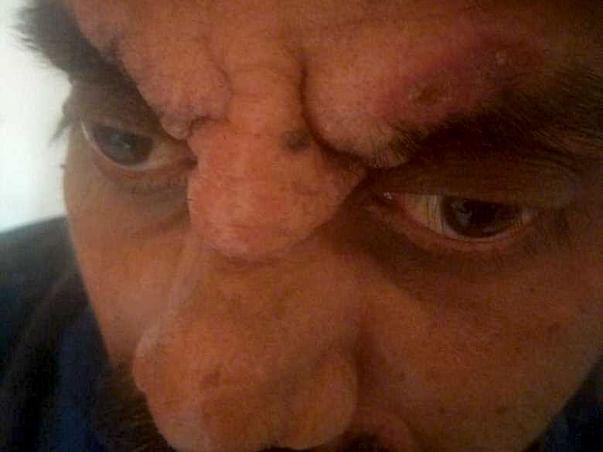 Help Me Fight Trichoblastoma