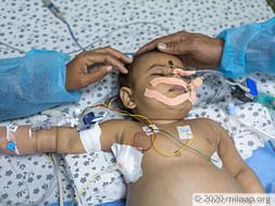 This 8-Month-Old's Stomach Is Swelling Like A Balloon