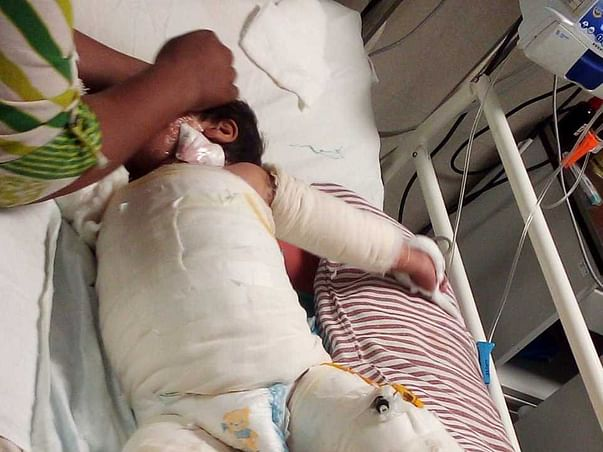Help Pihu Need Your Help Recover From Water Burn