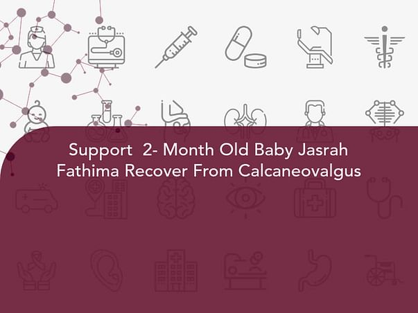 Support  2- Month Old Baby Jasrah Fathima Recover From Calcaneovalgus