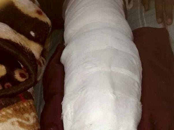 18 years old Sandeep yadav needs your help fight Multiple fracture bones