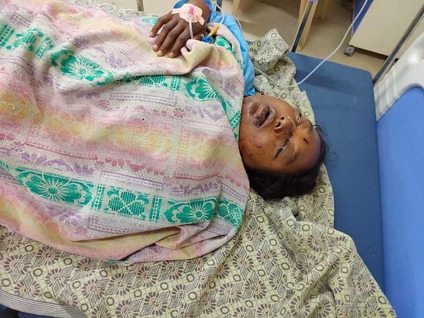 Support Ponnam Sarojana Recover From Accident