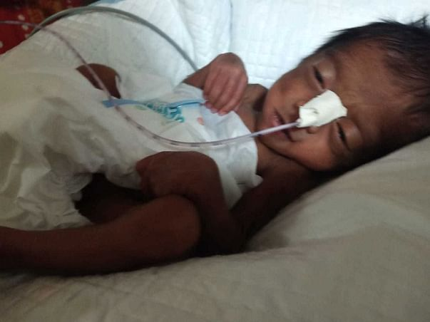 Support Baby Of Poornima Recover From Prematurity