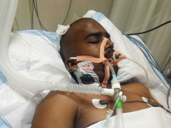 22 years old Umesh needs your help fight Head injury and neurological shock