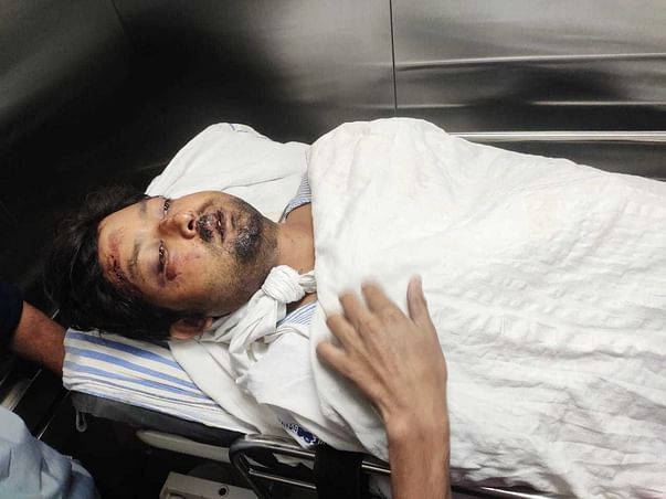 Support Md Sazad Alam Recover From Head Injury