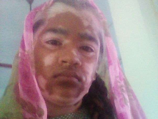14 Years Old Thaseena Needs Your Help Fight Impingement Syndrome