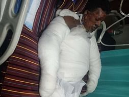 Support Manjunatha Recover From Gas Cylinder Blast Accident