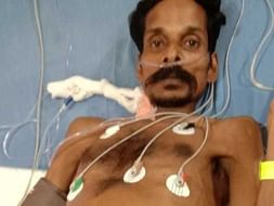 Help Nagesh Get Treatment For Myeloproliferative Disorder