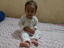 2 Years Old Divyan Kumar Needs Your Help Fight Kidney Disease & Multiple Organ Failure