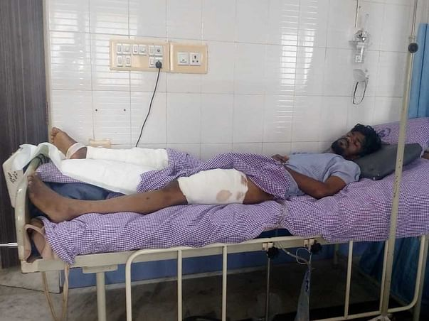 Support R Jegan Recover From Leg Injury