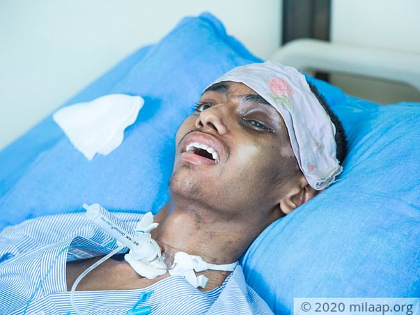 Support Janesh To Recover From Coma