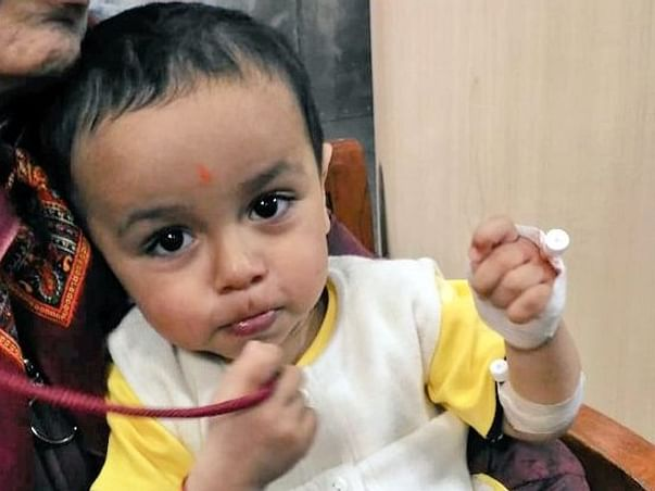 Help 1 Year Old Virat Undergo Major Lung Surgery