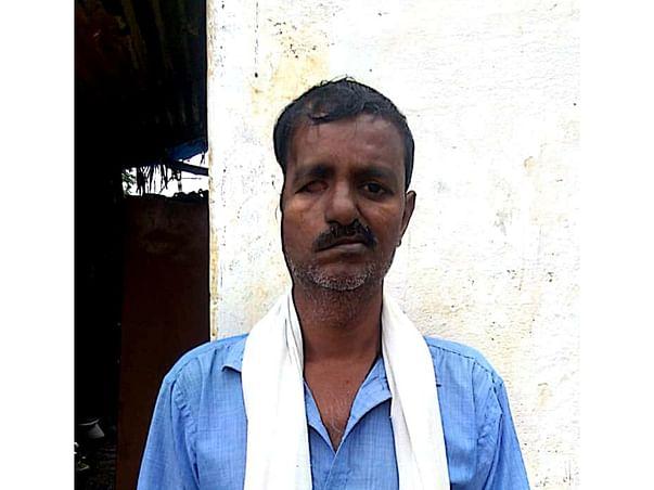Support Srinivasa.m Recover From Right Sphenopetroclival Meningioma