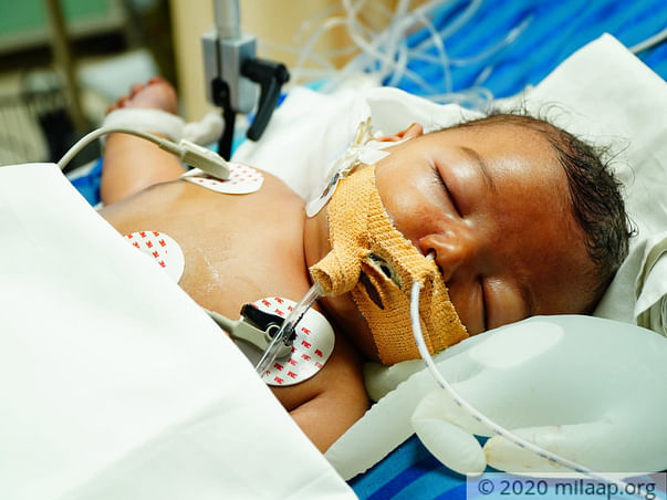 Help Vishvas Fight Life Threatening Infection