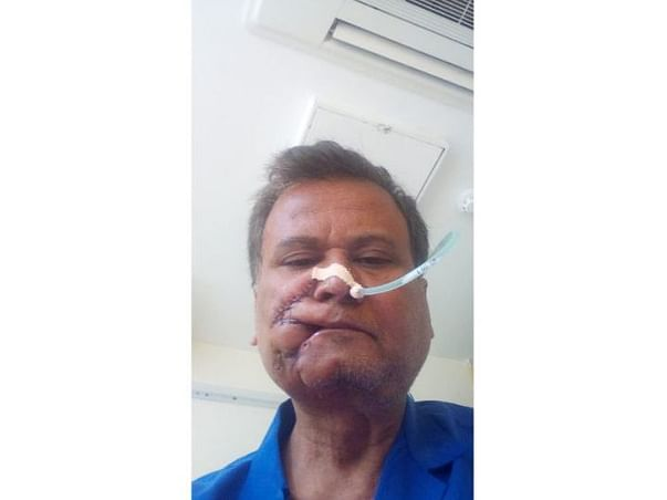 Help My Father Fight Oral Cancer