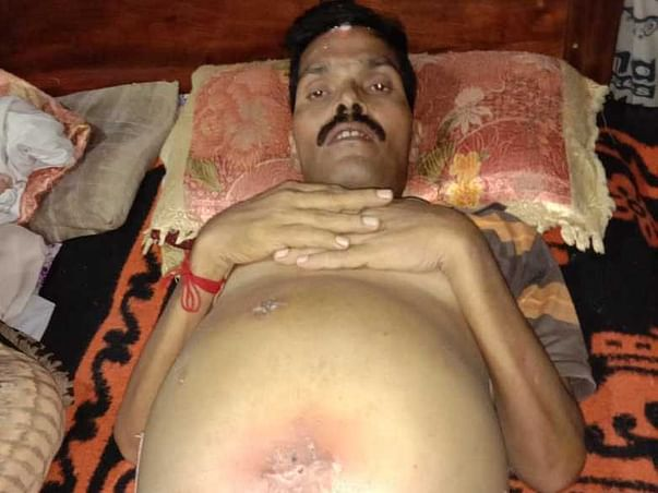 This 49 years old needs your urgent support in fighting liver failure