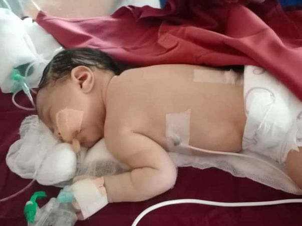 Help This 5 Days Old Fight Meconium Aspiration Syndrome