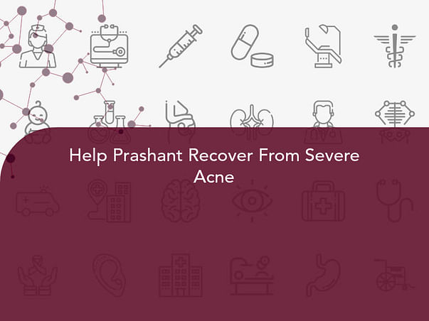 Help Prashant Recover From Severe Acne