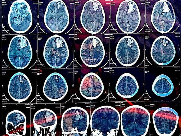 8 Years Old Uma Mahesh Needs Your Help Fight Brain Tumor
