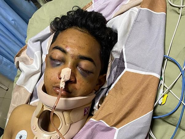 Support Aquib Farook bade Recover From Major Accident