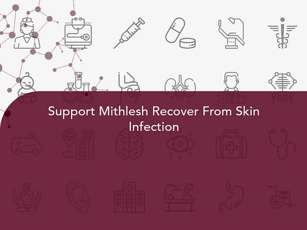 Support Mithlesh Recover From Skin Infection