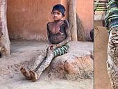 Rare Genetic Disorder Turns Tribal Girl's Skin Into Stones