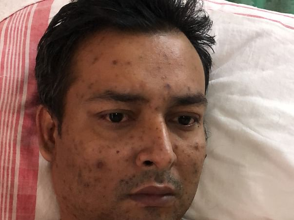 Help & Support Manash Boruah Recover From Coma