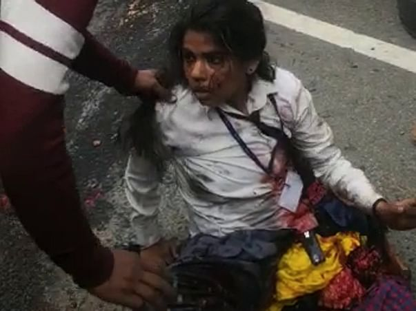 Help 19 Year Old Shalini Recover From Accident & Amputation
