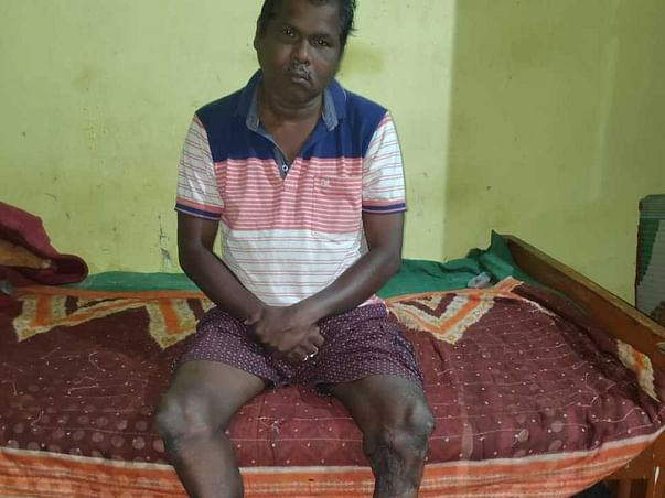 Support Basanta Kumar Mohanty To Walk Again