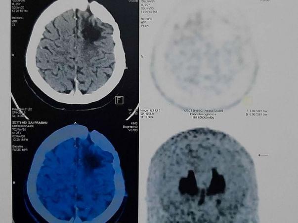 Help Prabhu Recover From Brain Tumour