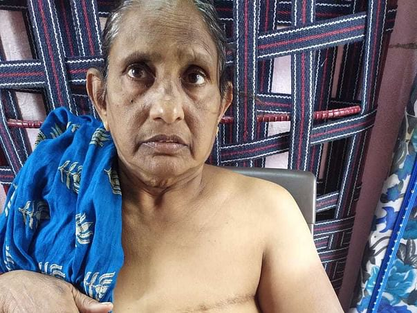 My Neighbour Is Struggling With Breast Cancer, Help Her