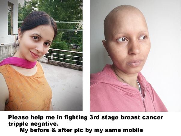 36 Years Old Upasna Needs Your Help Fight 3rd Stage Breast Cancer