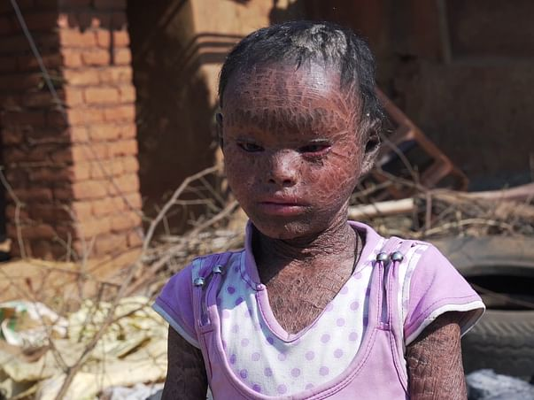 Help 7-year old Babita recover from a rare skin disorder