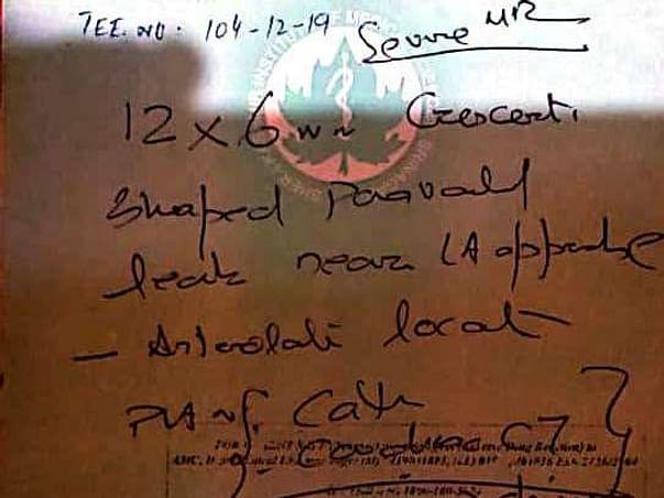 Help Riyaz Ahmad For Paravalvular Closure Treatment.