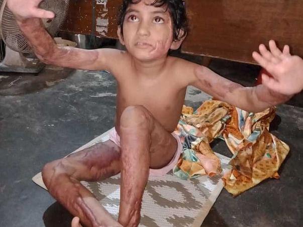7 Years Old Subhasmita Sahoo Needs Your Help Fight Body Burn