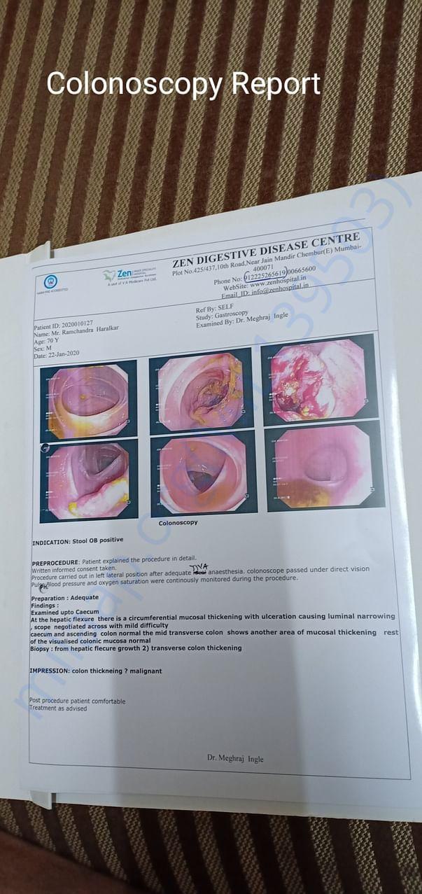 Colonoscopy Report