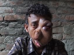 28-YO Man Has A Painful Tumour On His Face