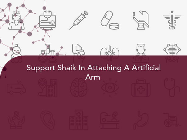 Support Shaik In Attaching A Artificial Arm