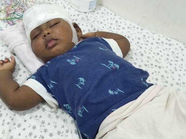 Help Thaara for brain surgery