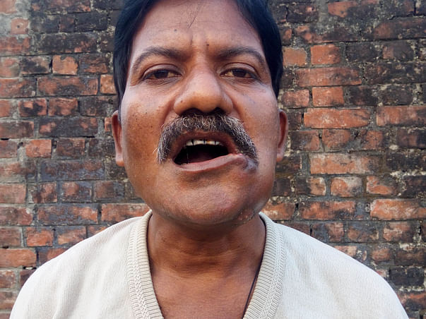 Support Jagjeevan Prasad Recover From Oral Cancer