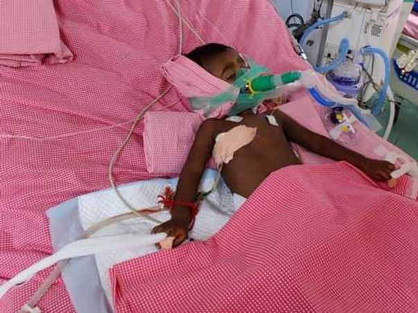 Support 1 Year Old Baby Of Nagadurga To Recover From Severe Sepsis, Multiple Organ Dysfunction And AKDS