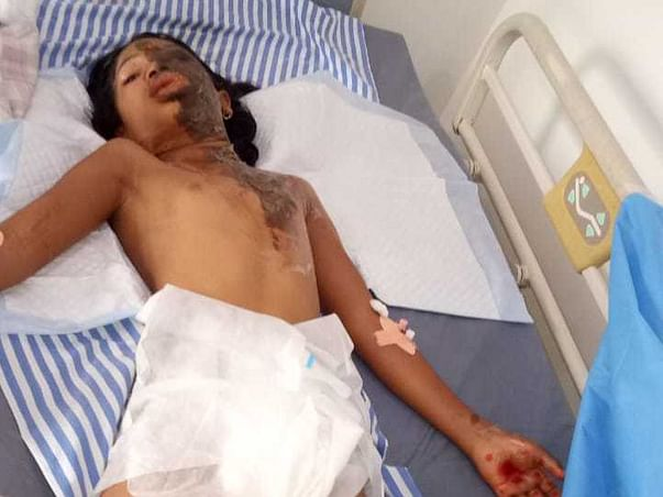 9 Years Old Bhabya Needs Your Help Fight Body Burn