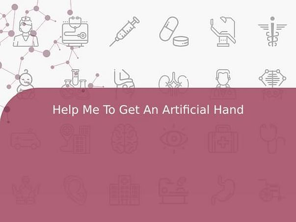 Help Me To Get An Artificial Hand