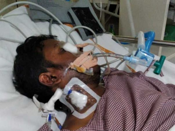 Help my brother fight Head injury and neurological shock