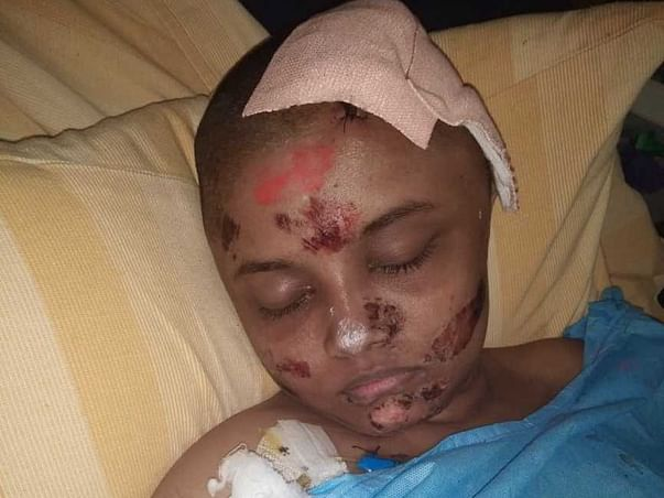 Support Amusarathinam Recover From Road Accident
