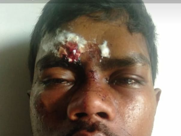 Support Madhu Recover From Accident