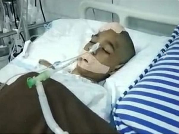 My Friend Sujeet Is Struggling With Cerebral Edema, Help Him
