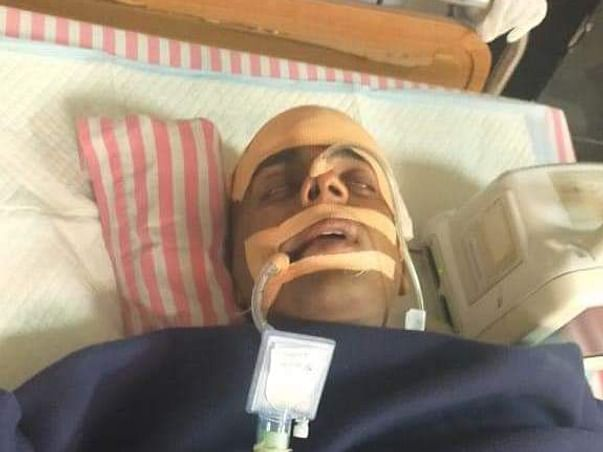 Help Mahesh Recover From Brain Haemorrhage